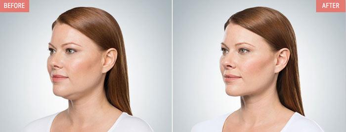 преди и после с belkyra